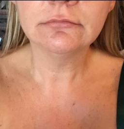 Mini tone facial toning equiement