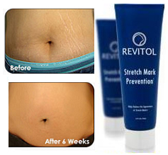 buy-revitol-stretch-mark-cream-online