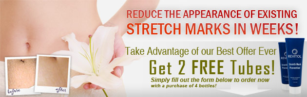 reduce-stretch-marks