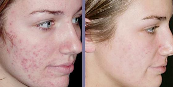 revitol-scar-cream-acne-scars-cure