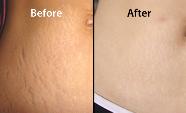 strech-marks-before-after
